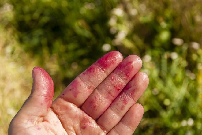 Plamy z owoców: czym domyć ręce po czarnych porzeczkach, jagodach, śliwkach i grzybach?